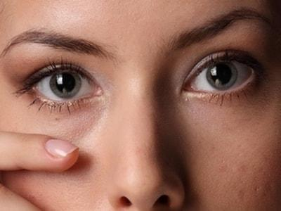 Мешки под глазами - причины и лечение фото
