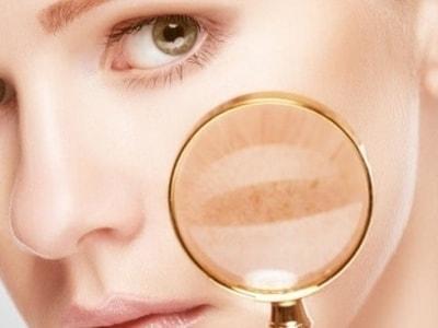 Убрать пигментацию на лице в домашних условиях фото