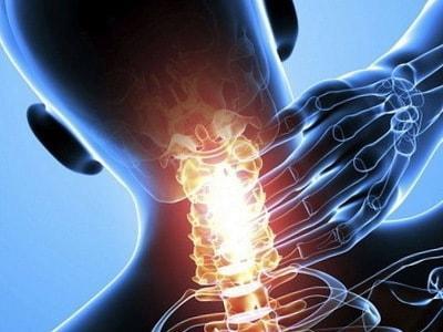 Упражнения при шейном остеохондрозе в домашних условиях фото