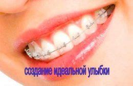 Ортодонтия - установка детских брекетов
