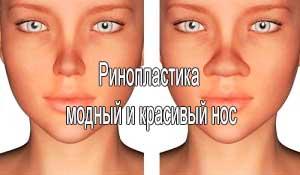 Ринопластика — модный и красивый нос