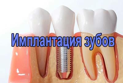 Имплантация зубов. Операция синус-лифтинг