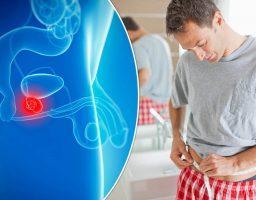 Аденома предстательной железы, методы лечения и симптомы